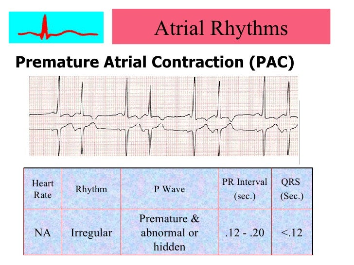 How to Identify Heart Arrhythmias pictures