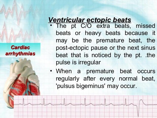 Ventricular Ectopic Beats Ventricular Ectopic