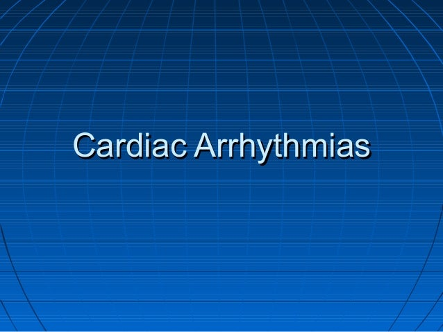 Cardiac ArrhythmiasCardiac Arrhythmias