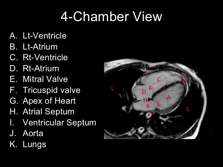 Heart anatomy coronary arteries