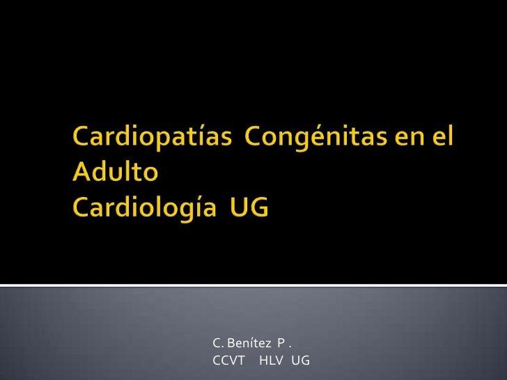 Cardiopatías  congénitas en el adulto