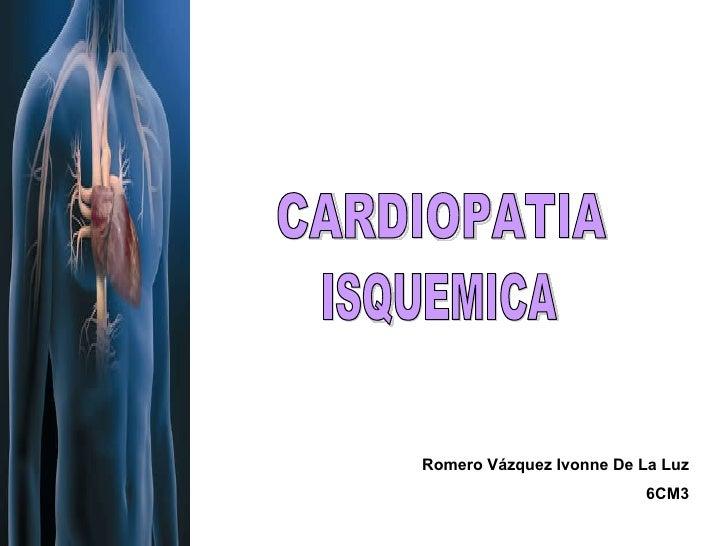 CARDIOPATIA ISQUEMICA Romero Vázquez Ivonne De La Luz 6CM3