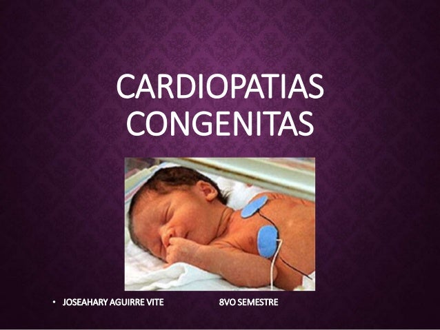 CARDIOPATIAS CONGENITAS • JOSEAHARY AGUIRRE VITE 8VO SEMESTRE