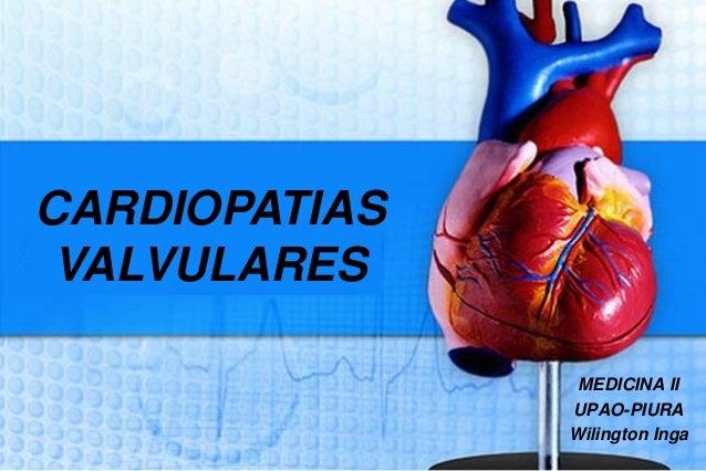 MEDICINA II  UPAO-PIURA  Wilington Inga  CARDIOPATIAS  VALVULARES