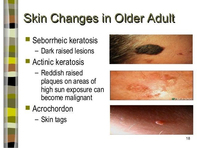 Care Of Aging Skin Fall 2013 Abridged