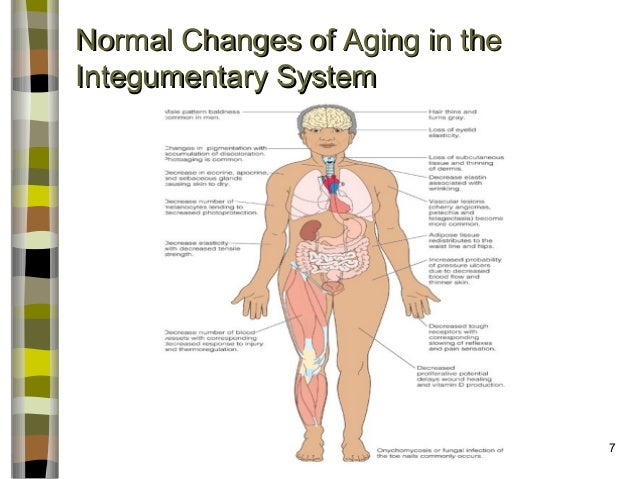changes associated with aging Ageing or aging (see spelling differences) the very general idea that changes associated with ageing are the result of chance damage that accumulates over time.