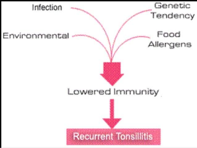 pathophysiology of tonsillitis diagram - 28 images - 5 ...