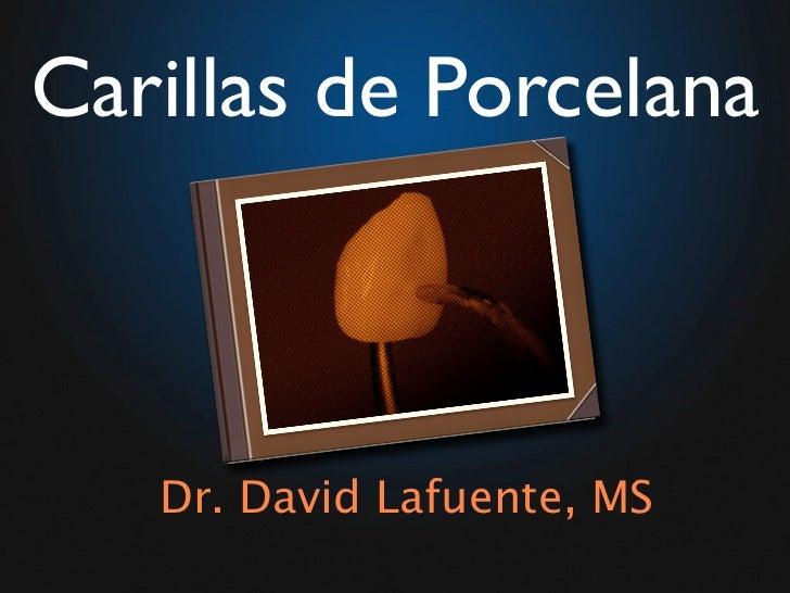 Carillas de Porcelana       Dr. David Lafuente, MS