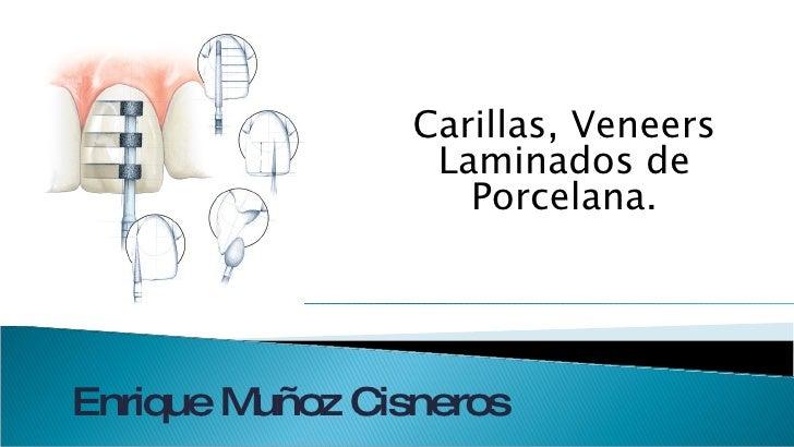 Carillas, Veneers Laminados de Porcelana. Enrique Muñoz Cisneros