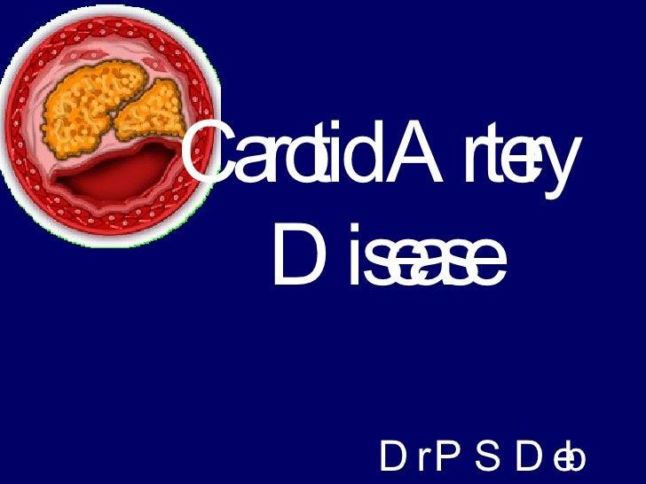 Carotid Artery Disease Dr P S Deb
