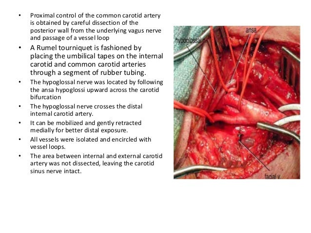 carotid endarterectomy thesis Approval page master ofdental science thesis novel ceramides ofporphyromonas gingiva/is recovered in human carotid endarterectomy samples presented by.
