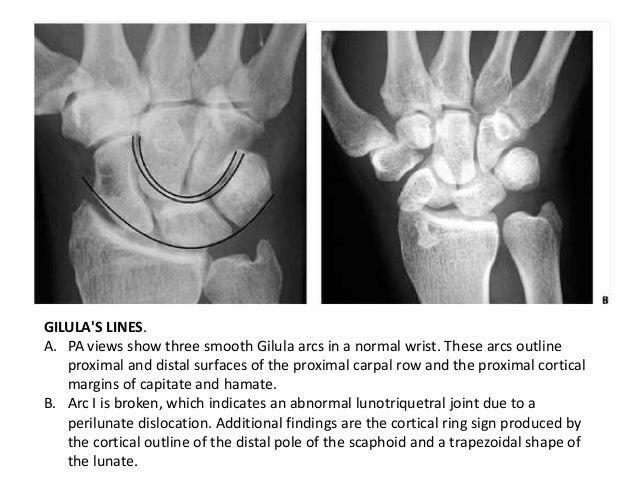 Carpal bone fractures Lunate Dislocation