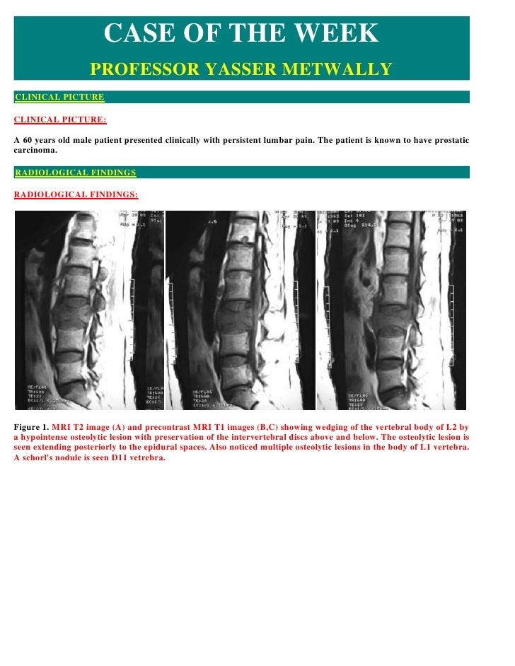 Case record...Spinal metastasis