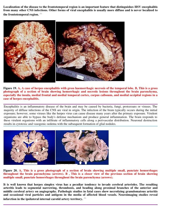 Most reports of herpesvirus brain stem encephalitis do not distinguish between HSV-1 and HSV-2 2