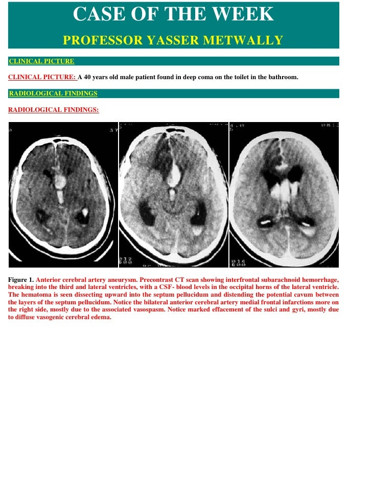 CASE OF THE WEEK                     PROFESSOR YASSER METWALLY CLINICAL PICTURE  CLINICAL PICTURE: A 40 years old male pat...