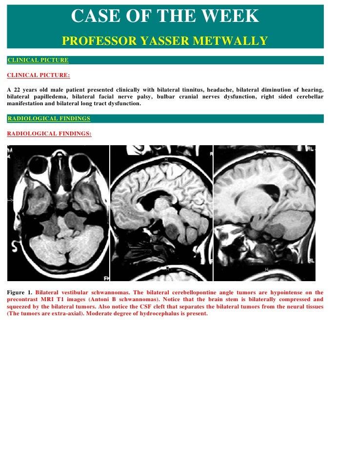 Case record...Neurofibromatosis type 2