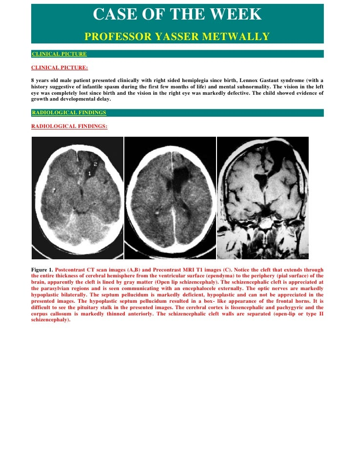 CASE OF THE WEEK                       PROFESSOR YASSER METWALLY CLINICAL PICTURE  CLINICAL PICTURE:  8 years old male pat...