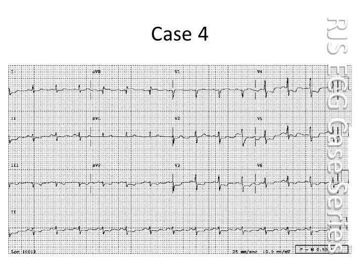Case 004