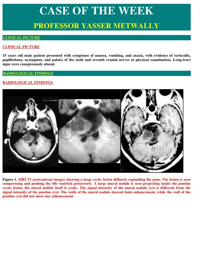 Case record...Brain stem pilocytic astrocytoma