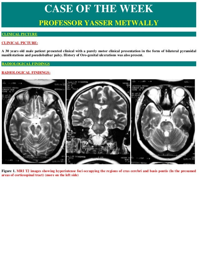 CLINICAL PICTURE: A 30 years old male patient presented clinical with a purely motor clinical presentation in the form of ...