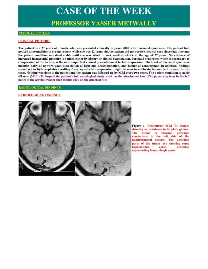 CASE OF THE WEEK                         PROFESSOR YASSER METWALLY CLINICAL PICTURE  CLINICAL PICTURE:  The patient is a 3...
