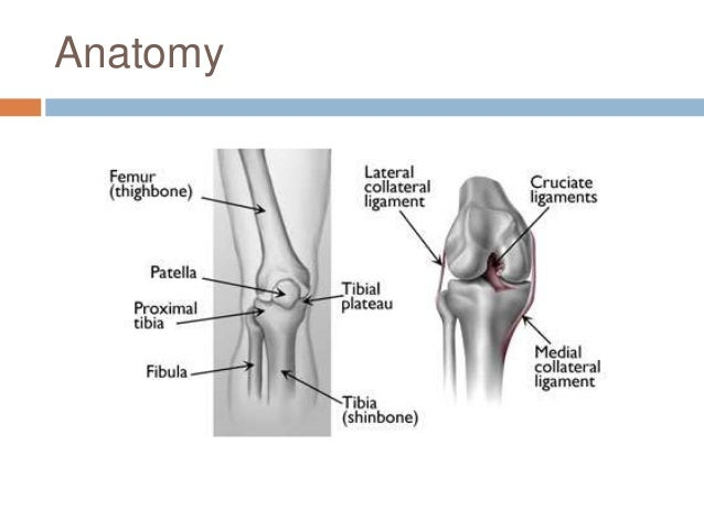 Management of tibial plateau fracture