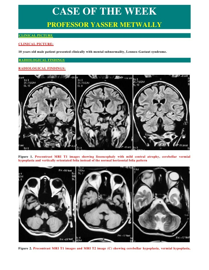 CASE OF THE WEEK                   PROFESSOR YASSER METWALLY CLINICAL PICTURE  CLINICAL PICTURE:  10 years old male patien...