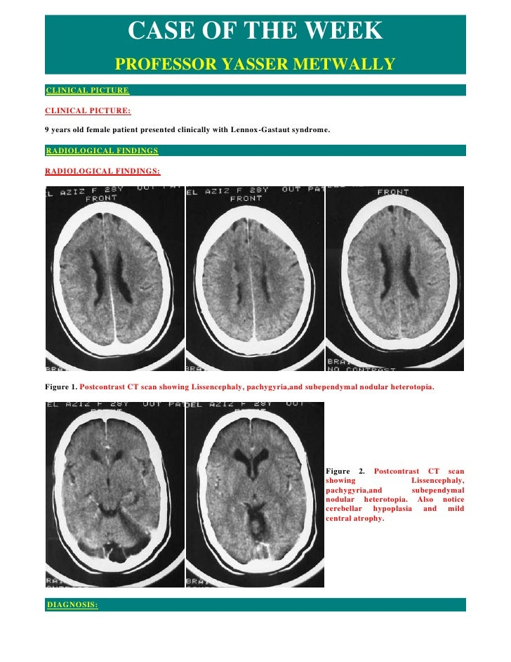 CASE OF THE WEEK                   PROFESSOR YASSER METWALLY CLINICAL PICTURE  CLINICAL PICTURE:  9 years old female patie...