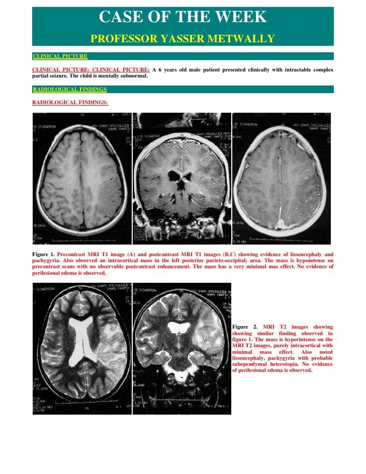 CASE OF THE WEEK                        PROFESSOR YASSER METWALLY CLINICAL PICTURE  CLINICAL PICTURE: CLINICAL PICTURE: A ...