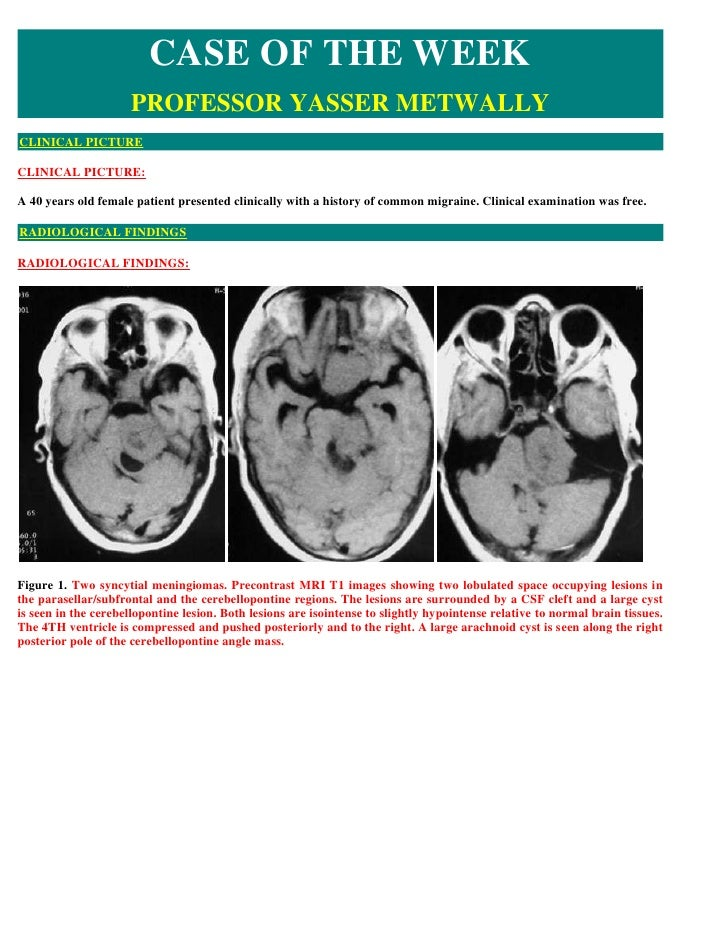 CASE OF THE WEEK                      PROFESSOR YASSER METWALLY CLINICAL PICTURE  CLINICAL PICTURE:  A 40 years old female...