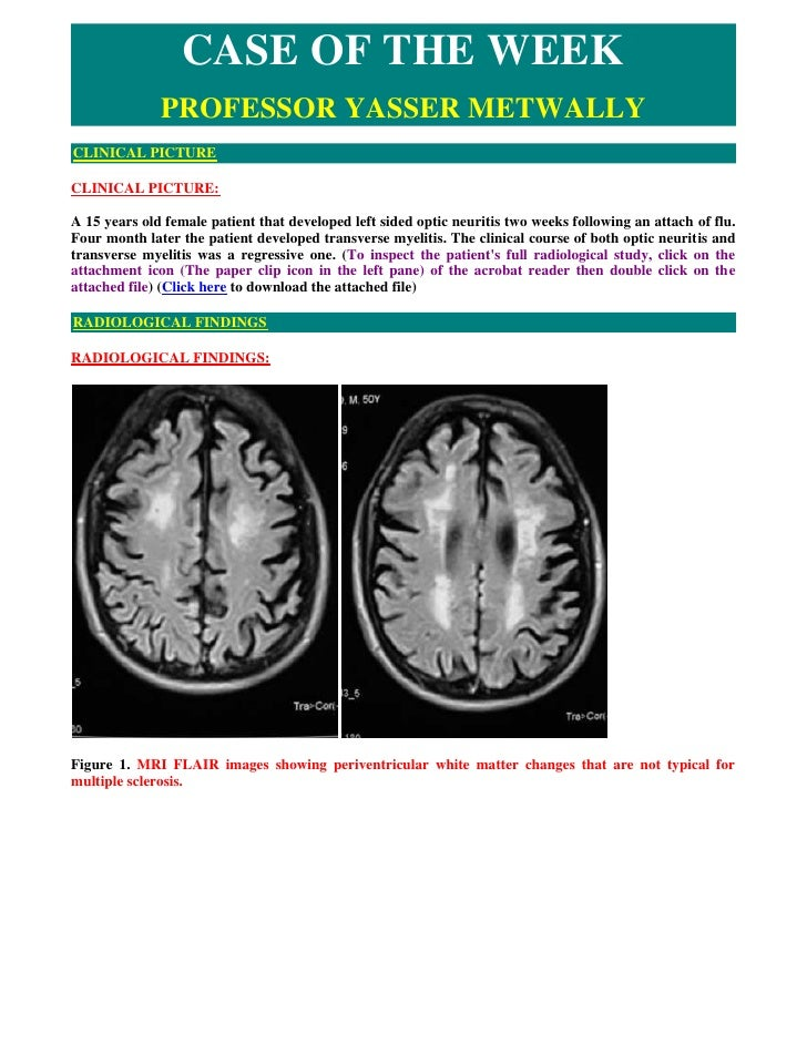Case record...Neuromyelitis optica