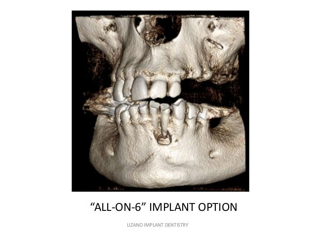 """""""ALL-ON-6"""" IMPLANT OPTION LIZANO IMPLANT DENTISTRY"""