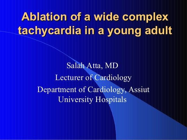 Caseof wide QRS tachycarfdia ablation
