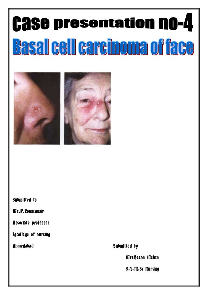 Case presentation of basal cell carcinoma of face no 4