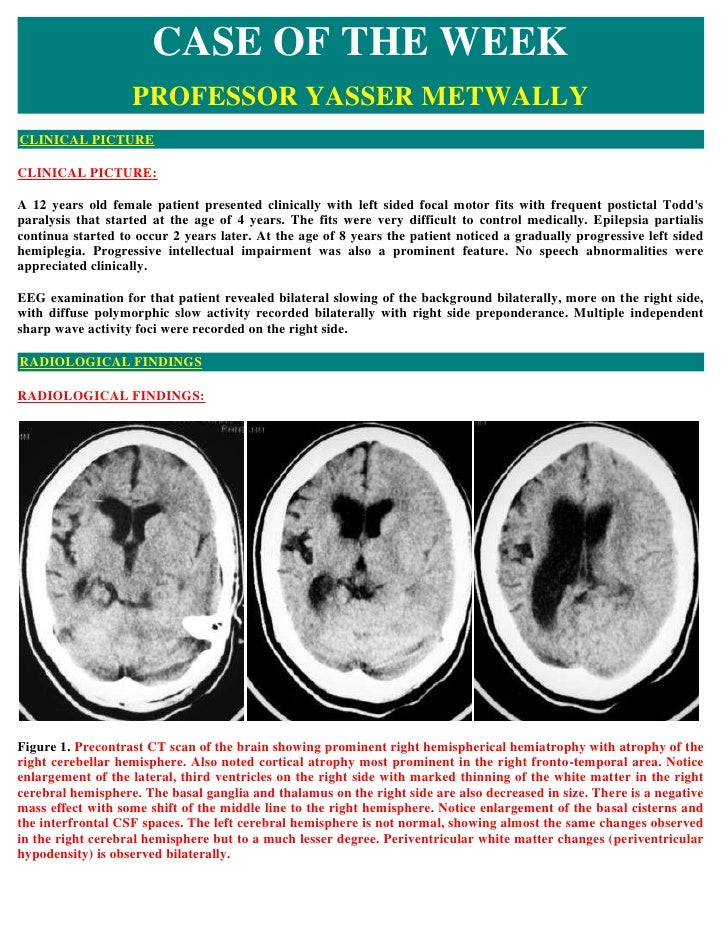 CASE OF THE WEEK                    PROFESSOR YASSER METWALLY CLINICAL PICTURE  CLINICAL PICTURE:  A 12 years old female p...