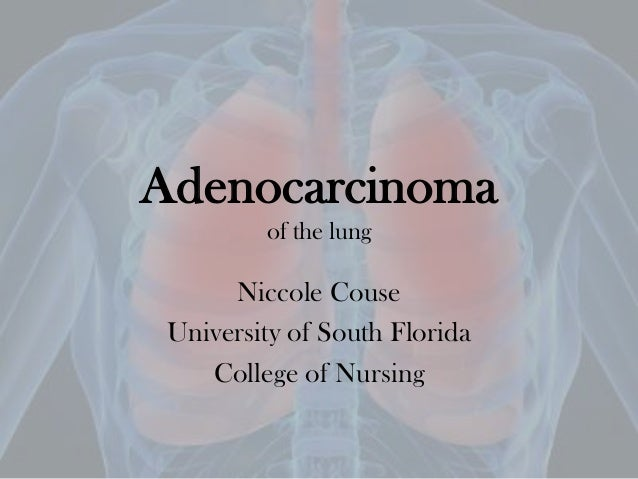 Adenocarcinomaof the lungNiccole CouseUniversity of South FloridaCollege of Nursing