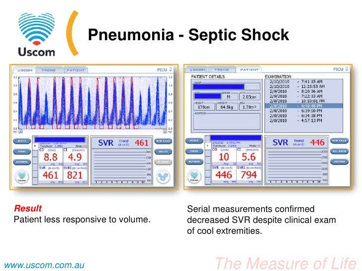 case study pneumonia pediatric