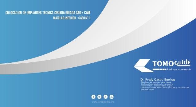 www.tomoguide.com COLOCACION DE IMPLANTES TECNICA CIRUGIA GUIADA CAD / CAM MAXILAR INFERIOR - caso N°1 Odontólogo, Univers...