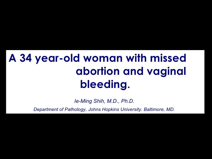 A 34 year-old woman with missed  abortion and vaginal bleeding. Ie-Ming Shih, M.D., Ph.D.   Department of Pathology, Johns...