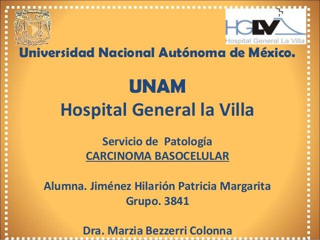 Universidad Nacional Autónoma de México. UNAM Hospital General la Villa Servicio de Patología CARCINOMA BASOCELULAR Alumna...