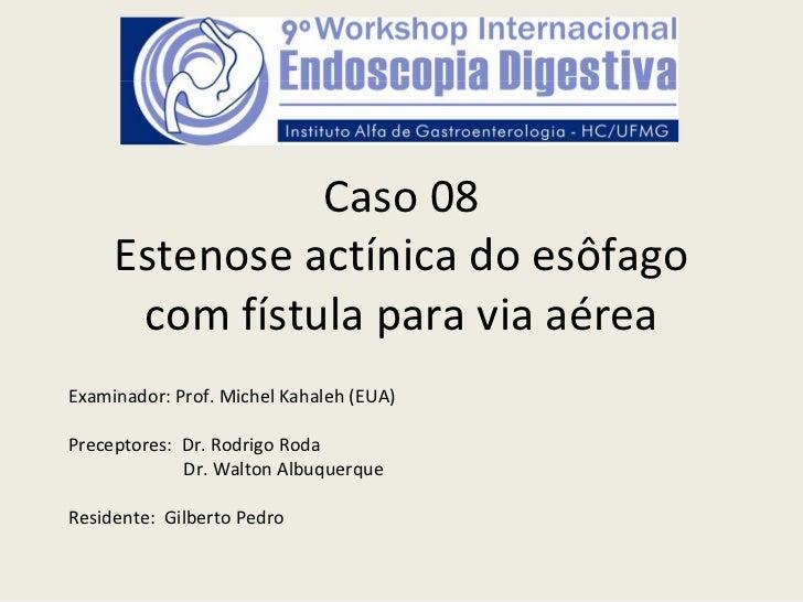 Caso08     Estenoseactínica doesôfago      comfístulaparaviaaéreaExaminador:Prof.MichelKahaleh (EUA)Preceptores...