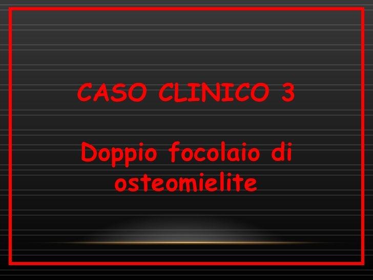 CASO CLINICO 3Doppio focolaio di  osteomielite