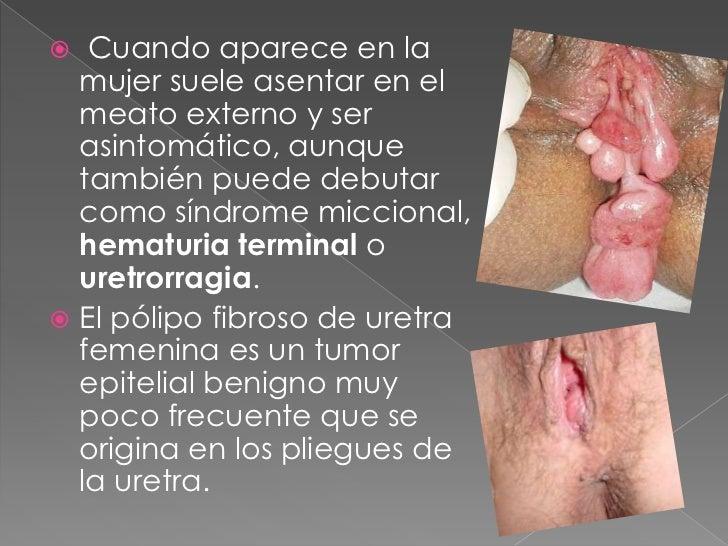Infecciones Urinarias en la Mujer Cuando Aparece en la Mujer