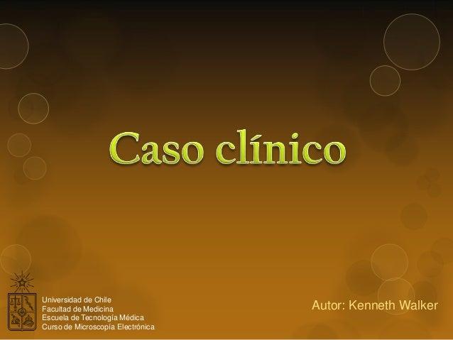 Universidad de Chile Facultad de Medicina Escuela de Tecnología Médica Curso de Microscopía Electrónica  Autor: Kenneth Wa...