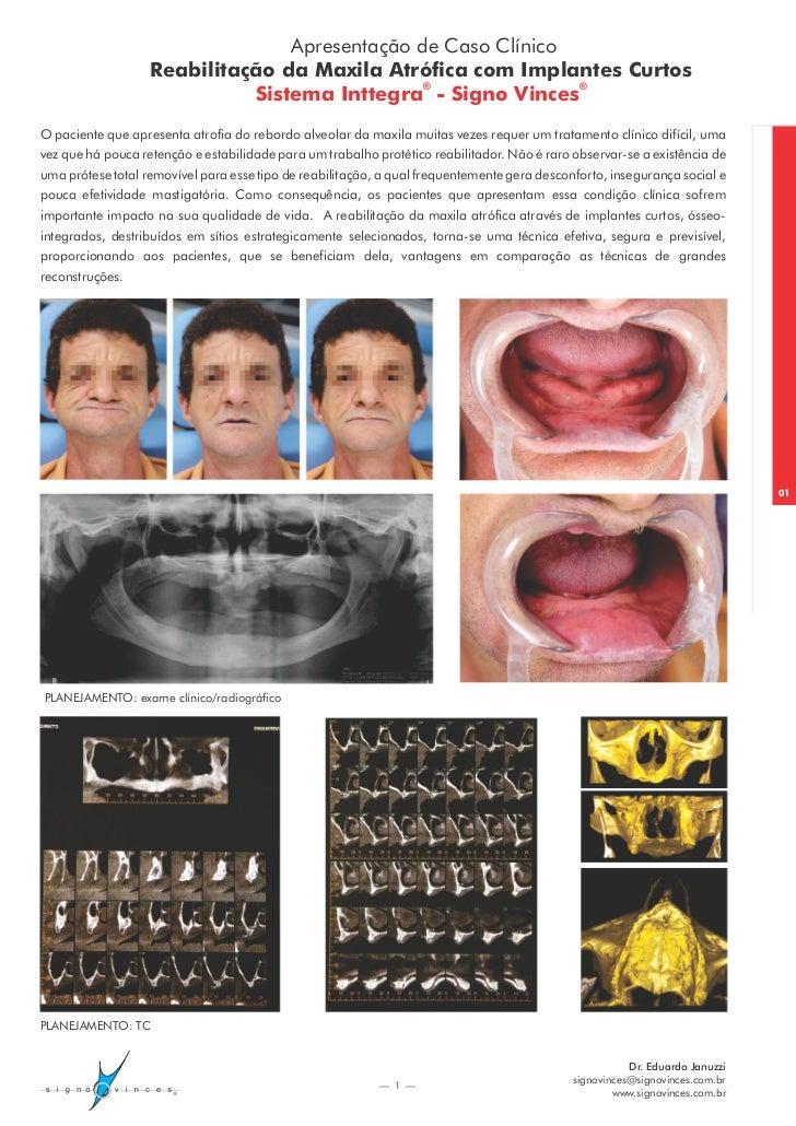 Apresentação de Caso Clínico                   Reabilitação da Maxila Atrófica com Implantes Curtos                       ...