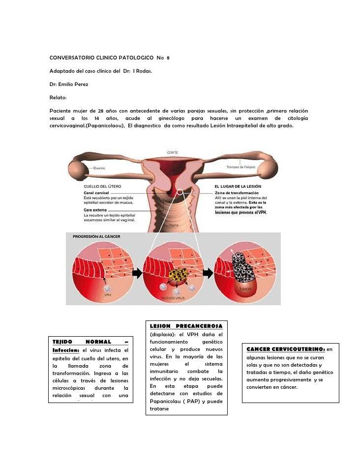 CONVERSATORIO CLINICO PATOLOGICO No 8Adaptado del caso clínico del Dr: I Rodas.Dr: Emilio PerezRelato:Paciente mujer de 28...