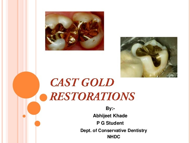 Cast gold Inlay restorations