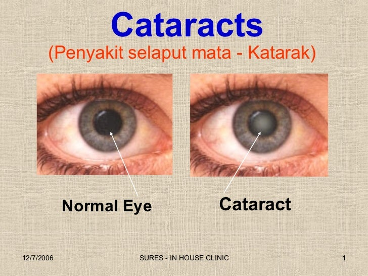 (Penyakit selaput mata - Katarak) Cataract Normal Eye Cataracts