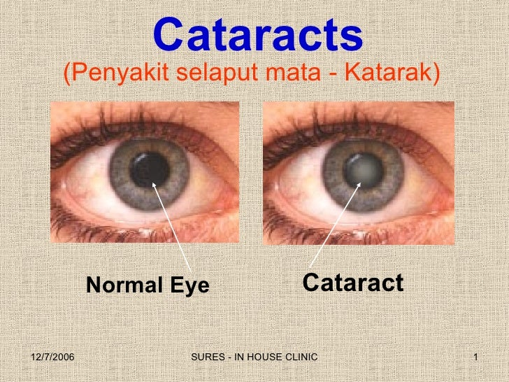(Penyakit selaput mata - Katarak) Cataract Normal Eye Cataracts