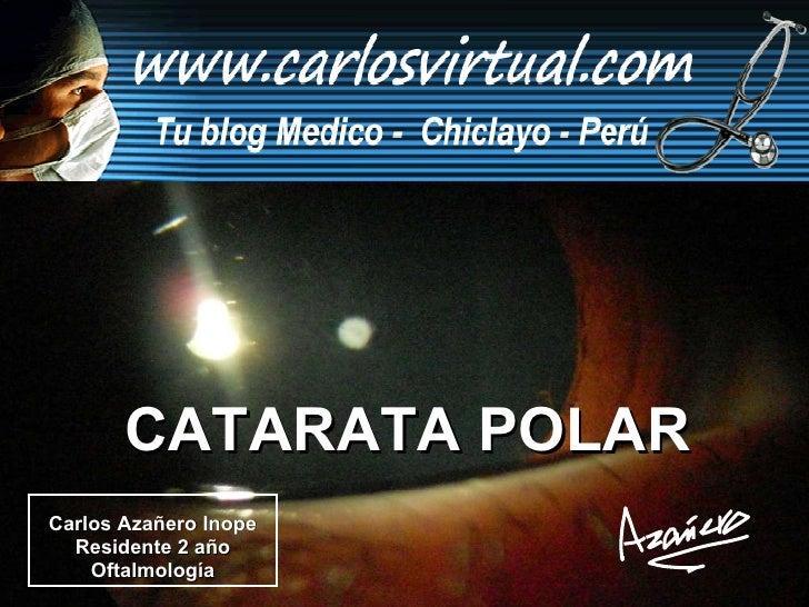 Carlos Azañero Inope Residente 2 año Oftalmología CATARATA POLAR